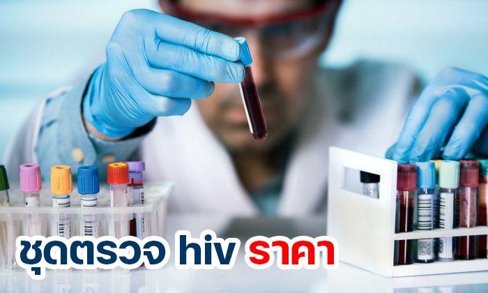 ชุดตรวจ HIV ราคา