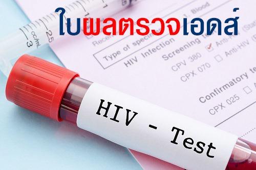 ใบ ผลตรวจเอดส์